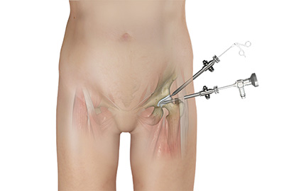 Hip Arthroscopy